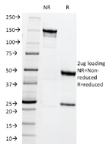 Anti-MRP1 / ABCC1 (Multidrµg Resistance Related Protein 1) Monoclonal Antibody(Clone: MRP1/1344)