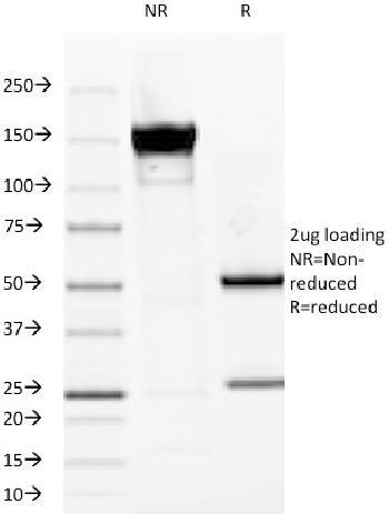 Anti-MUC1 / CA15-3 / EMA / CD227 (Epithelial Marker) Monoclonal Antibody(Clone: VU-2G7)