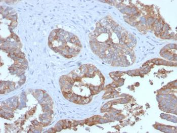 Anti-MUC1 / CA15-3 / EMA / CD227 (Epithelial Marker) Monoclonal Antibody(Clone: MUC1/2729R)