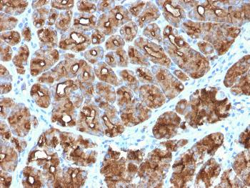Anti-MUC1 / CA15-3 / EMA / CD227 (Epithelial Marker) Monoclonal Antibody(Clone: MUC1/2818R)