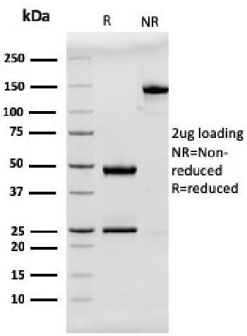 Anti-MUC2 (Mucin 2) Monoclonal Antibody(Clone: rMLP/842)