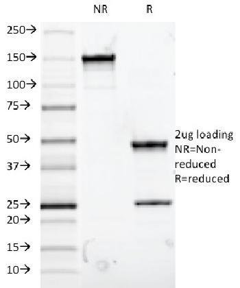 Anti-MUC5AC (Mucin 5AC / Gastric Mucin) Monoclonal Antibody(Clone: 9-13M1)