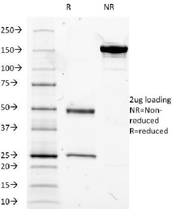 Anti-MUC5AC (Mucin 5AC / Gastric Mucin) Monoclonal Antibody(Clone: 2-11M1)