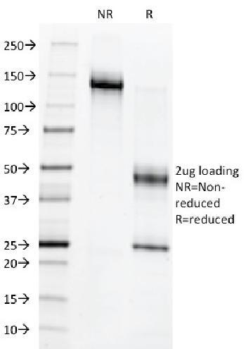 Anti-c-Myb Oncoprotein Monoclonal Antibody(Clone: MYB286)