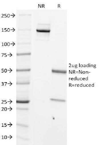 Anti-c-Myc Oncoprotein Monoclonal Antibody(Clone: MYC699)