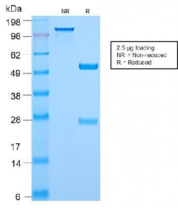 Anti-c-Myc Oncoprotein Monoclonal Antibody(Clone: MYC2895R)