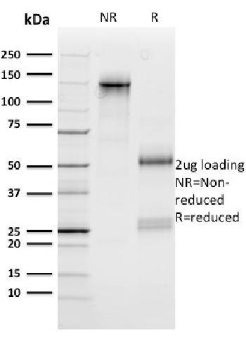 Anti-n-Myc (Neuroblastoma Marker) Monoclonal Antibody(Clone: NMYC-1)