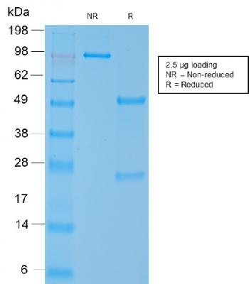 Anti-Smooth Muscle Myosin Heavy Chain (SM-MHC) Monoclonal Antibody(Clone: MYH11/2303R)