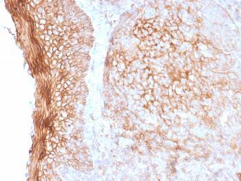 Anti-CD73 (Immuno-Oncology Target) Monoclonal Antibody(Clone: NT5E/2505)