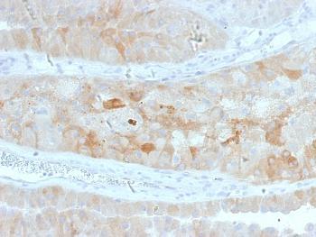 Anti-ROR2 Monoclonal Antibody(Clone: ROR2/1912)