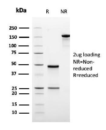 Anti-Ornithine Decarboxylase-1 (ODC-1) Monoclonal Antibody(Clone: rODC1/485)