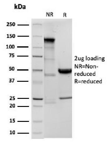 Anti-Ornithine Decarboxylase-1 (ODC-1) Monoclonal Antibody(Clone: ODC1/3636R)