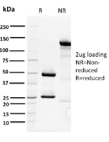 Anti-ORC1 Monoclonal Antibody(Clone: 7F6/1)