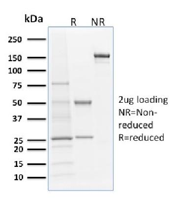 Anti-Langerin / CD207 (Marker of Langerhans Cells) Monoclonal Antibody(Clone: LGRN/1821)
