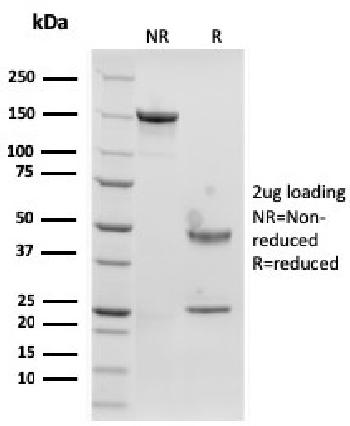 Anti-Langerin / CD207 (Marker of Langerhans Cells) Monoclonal Antibody(Clone: rLGRN/1821)