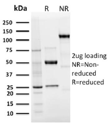 Anti-Langerin / CD207 (Marker of Langerhans Cells) Monoclonal Antibody(Clone: LGRN/3136R)
