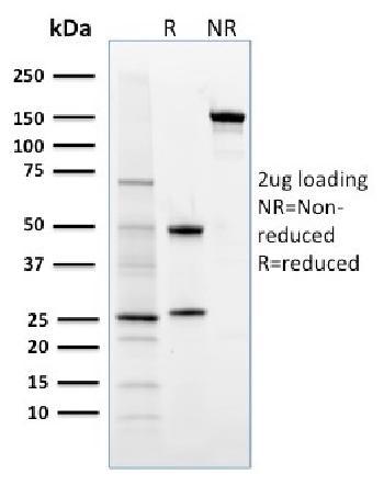 Anti-FOXP3 (Forkhead Box Protein P3) / Scurfin Monoclonal Antibody(Clone: 3G3)