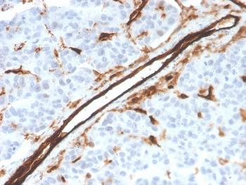 Anti-CD31 / PECAM-1 (Endothelial Cell Marker) Monoclonal Antibody(Clone: PECAM1/3526)