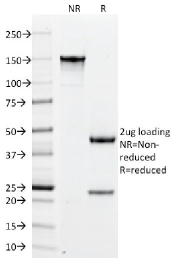 Anti-PLGF (Placental Growth Factor) Monoclonal Antibody(Clone: PLGF/94)