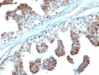 Anti-PTEN (Tumor Suppressor Oncoprotein) Monoclonal Antibody(Clone: PTEN/2110)