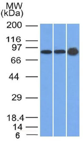 Anti-Plakophilin-1 (PKP1) Monoclonal Antibody(Clone: 10B2)
