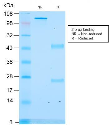Anti-ACTH (Adrenocorticotrophic Hormone) (C-Terminus) Monoclonal Antibody(Clone: rCLIP/1418)