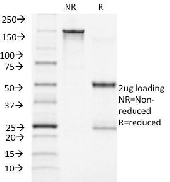 Anti-ACTH (Adrenocorticotrophic Hormone) (C-Terminus) Monoclonal Antibody(Clone: CLIP/1418)