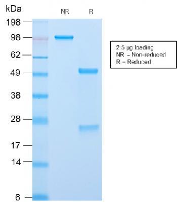 Anti-ACTH (Adrenocorticotrophic Hormone) (C-Terminus) Monoclonal Antibody(Clone: CLIP/2859R)