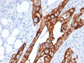 Anti-Cytokeratin 20 (KRT20) (Colorectal Epithelial Marker) Monoclonal Antibody(Clone: KRT20/1991)