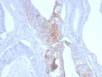 Anti-Cytokeratin 20 (KRT20) (Colorectal Epithelial Marker) Monoclonal Antibody(Clone: KRT20/3145)