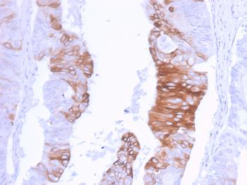 Anti-Cytokeratin 20 (KRT20) (Colorectal Epithelial Marker) Monoclonal Antibody(Clone: KRT20/3129R)