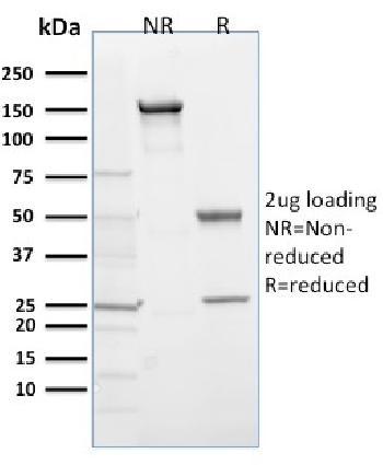 Anti-EGLN1 / PHD2 Monoclonal Antibody(Clone: 366G/76/3)