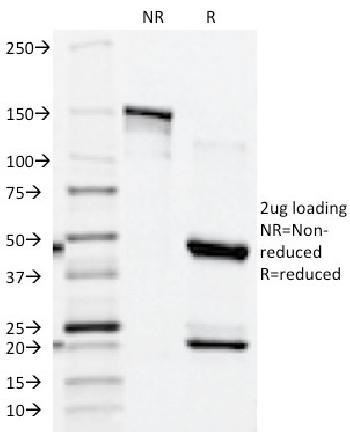 Anti-Prostate Specific Acid Phosphatase (PSAP) Monoclonal Antibody(Clone: ACPP/1339)
