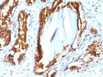 Anti-Prostate Specific Acid Phosphatase (PSAP) Monoclonal Antibody(Clone: rACPP/1338)