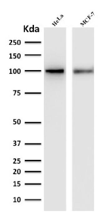 Anti-ENAH / MENA (Actin Regulator) Monoclonal Antibody(Clone: ENAH/1988)