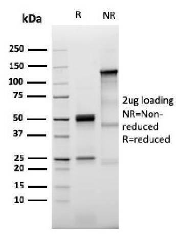 Anti-Prolactin Receptor (hPRL Receptor) Monoclonal Antibody(Clone: PRLR/3785R)