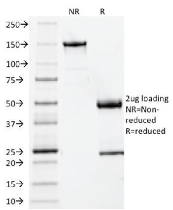Anti-Beta-2 Microglobulin (Renal Failure & Tumor Marker) Monoclonal Antibody(Clone: BBM.1)