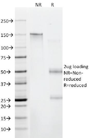 Anti-Beta-2 Microglobulin (Renal Failure & Tumor Marker) Monoclonal Antibody(Clone: C21.48A1)