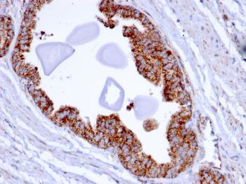 Anti-PMEPA1 / TMEPAI (Tumor Suppressor Oncoprotein) Monoclonal Antibody(Clone: PMEPA1/2696)