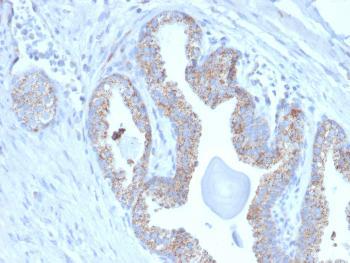 Anti-PMEPA1 / TMEPAI (Tumor Suppressor Oncoprotein) Monoclonal Antibody(Clone: PMEPA1/2697)