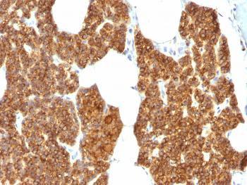 Anti-Parathyroid Hormone (PTH) (N-Terminal) Polyclonal Antibody