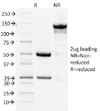 Anti-Cycloxygenase-2 (COX-2) Monoclonal Antibody(Clone: COX2/1941)