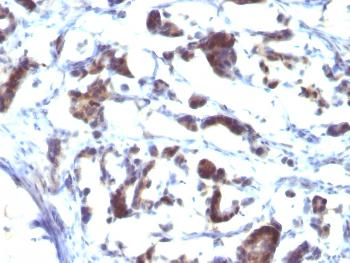 Anti-ZFYVE28 (Zinc Finger FYVE-type containing 28) Monoclonal Antibody(Clone: LST2/2426)