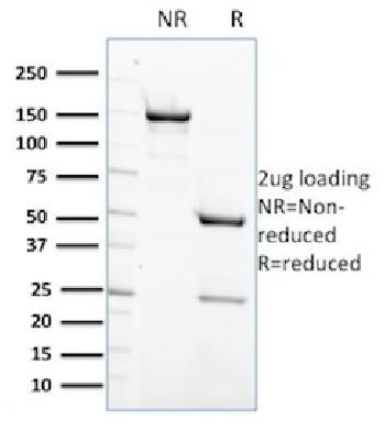 Anti-Protein Tyrosine Phosphatase, non-receptor type 6 Monoclonal Antibody(Clone: CPTC-PTPN6-2)