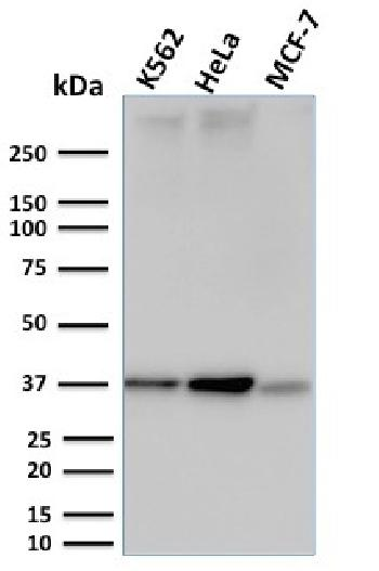 Anti-RAD51 (Prognostic and Response to Chemotherapy Marker) Monoclonal Antibody(Clone: RAD51/2753)