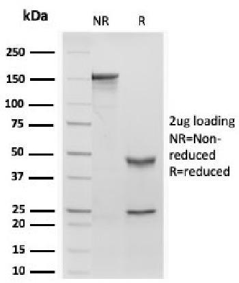 Anti-Retinol Binding Protein-1 (RBP1) Monoclonal Antibody(Clone: rRBP1/872)