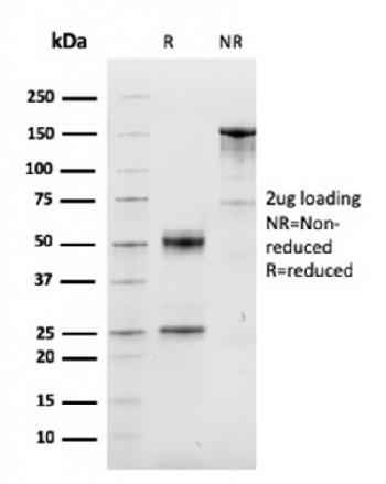 Anti-Cyclin D1 (G1-Cyclin & Mantle Cell Lymphoma Marker) Monoclonal Antibody(Clone: CCND1/3548)