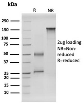 Anti-RET Proto-oncogene Monoclonal Antibody(Clone: RET/2599)