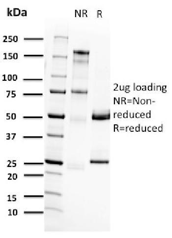 Anti-RET Proto-oncogene Monoclonal Antibody(Clone: RET/2662)