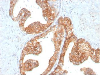 Anti-RET Proto-oncogene Monoclonal Antibody(Clone: RET/2795)